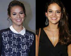 Bruna Marquezine antes e depois da Rinoplastia