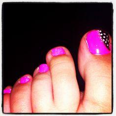My toe nail design
