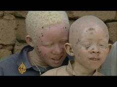 Crimes of Colour: Albinism in Tanzania African albinos killed for body organs - 23 Jul 09