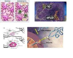 GENIO Italiano Giuseppe Cotellessa: Cos'è la proteina beta amiloide? La sua funzione e...