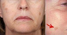 En vieillissant, voir apparaître sur notre peau de vilaines taches brunes... Ça peut être un choc! Avoir pris soin de sa peau toute sa vie et voir des taches apparaître POUF! C'est fâchantet peut devenir complexant. Voici une recette simple à réalis