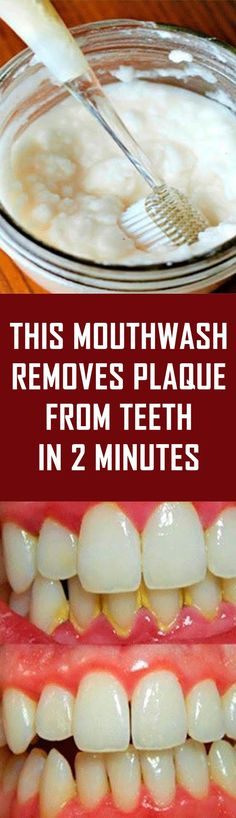This Mouthwash Removes Plaque From Teeth In 2 Minutes Having a dirty mouth can affect your entire state of health. After all, this is the primary source of nourishment. Using mouthwash is a good way t Natural Beauty Tips, Natural Cures, Natural Treatments, Skin Treatments, Natural Healing, Oral Health, Dental Health, Teeth Health, Health Care
