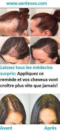 Laissez tous les médecins surpris: Appliquez ce remède et vos cheveux vont croître plus vite que jamais!