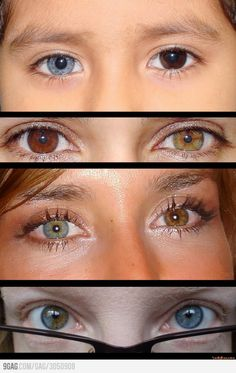So I heard you like heterochromia. Complete heterochromia is when the eyes are two different colors. Partial or sectoral heterochromia is when one eye is two different colors in itself,… Human Eye, Human Body, Pretty Eyes, Cool Eyes, Beautiful Eyes Color, Heterochromia Eyes, Parts Of The Eye, Genetics, Belle Photo