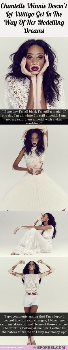 Chantelle Winnie doesn't let vitiligo get in the way of her modelling ambition
