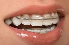 Straightening Teeth Without the Need for Braces  Dentist Cardiff  https://cardiffdentistry.com.au/