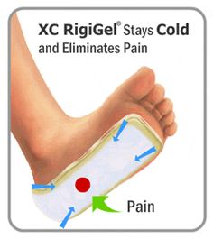 foot disorders plantar fasciitis