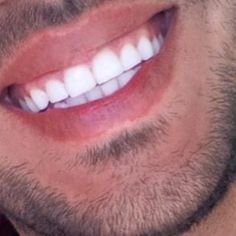 #invisaligndiamondprovider #orthodontistbeirut #teeth #teethwhitening #whitening #dental #beauty #beirut by dr_george_bardawil Our Teeth Whitening Page: http://www.myimagedental.com/services/cosmetic-dentistry/teeth-whitening/ Other Cosmetic Dentistry services we offer: http://www.myimagedental.com/services/cosmetic-dentistry Google My Business: https://plus.google.com/ImageDentalStockton/about Our Yelp Page: http://www.yelp.com/biz/image-dental-stockton-3 Our Facebook Page…