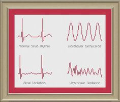 EKG arrhythmias