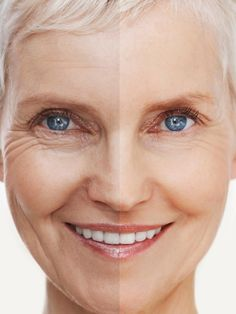 Age Spots Treatment