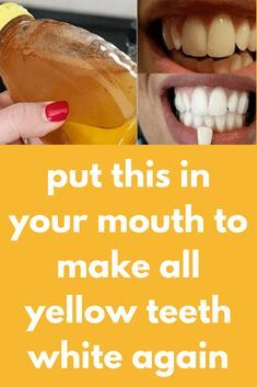 put this in your mouth to make all yellow teeth white again Your smile can say m. Get Whiter Teeth, Beautiful Teeth, Natural Teeth Whitening, Teath Whitening, Perfect Smile, Tea Stains, Healthy Teeth, White Teeth, Oral Health
