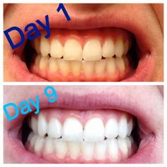 Oil-Pulling-with-coconut-oil-stops-cavities-in-your-mouth-600x600