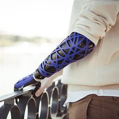 UNYQ launches collection of 3D printed prosthetic upper limb covers