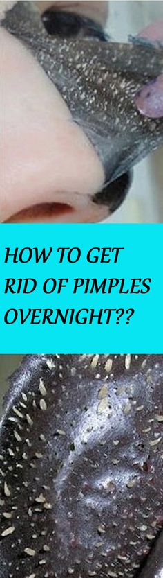 HOW TO GET RID OF PIMPLES OVERNIGHT? (NATURALLY AND FAST) Click the image for instructions :D