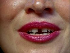 A clip from Gap-toothed Women (1987). An exploration of the perception of women's teeth.