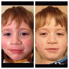 """Our Soothe Regimen is great for Sensitive skin, ROSACEA, ECZEMA, PSORIASIS, REDNESS, SUNBURNS, RAZOR BURN AND MUCH MORE! The little boy pictured, Noah, has eczema and was on 3 topical prescriptions in the """"before"""" photo, the after picture is only 5 days on Soothe! Message me and let's chat! You have nothing to lose with the 60 Day, Empty Bottle, Money Back Guarantee...except bad skin! https://hopecasey.myrandf.com/Shop/Soothe"""