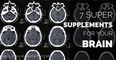 Natural remedies - Brain fog, memory, confusion: 7 Super Supplements for Your Brain | healtylivinghowto.com