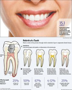 Plan for future stem cell research and application to regenerate teeth.
