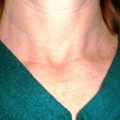 If you have been diagnosed with thyroid cancer, here are the things you need to do to make informed decisions regarding surgery and treatments.