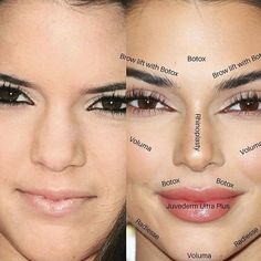 Why celebrities like Bella Hadid, Ariana Grande, and Kylie Jenner are suspected of having Botox brow lifts. Facial Fillers, Botox Fillers, Dermal Fillers, Lip Fillers, Kendall Jenner Plastic Surgery, Celebrity Plastic Surgery, Kylie Jenner Surgery, Face Plastic Surgery, Bad Plastic Surgeries