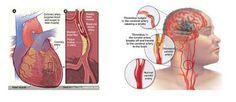 Obat Jantung Koroner Efektif, Info Cara Efektif Mengobati Jantung Koroner paling cepat dan alami akan di bahas secara lengkap di sini.  Berikut informasi dan tips mencegah dan sembuhkan penyakit jantung koroner secara alami.
