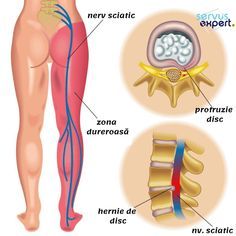 pain relief remedies: Effective Stretches For Sciatic Nerve Pain Relief Siatic Nerve, Nerve Pain, Arthritis Relief, Pain Relief, Yoga For Sciatica, Yoga Sequence For Beginners, Scoliosis Exercises, Natural Headache Remedies, Back Pain