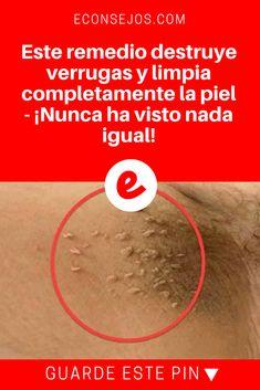 Verrugas tratamiento jpg | Este remedio destruye verrugas y limpia completamente la piel - ¡Nunca ha visto nada igual! | Sólo necesitará dos ingredientes para hacer el remedio. Aprende la receta aquí!