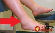 Toto pomôže, keď vás trápia opuchnuté nohy!