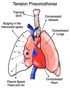 Tension Pneumo- Start point is pulmonary, without intervention the rapid downward spiral is cardiovascular.