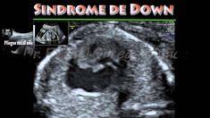Sindrome de Down Trisomia 21 pliegue nucal anormal higroma quistico Dr.R...
