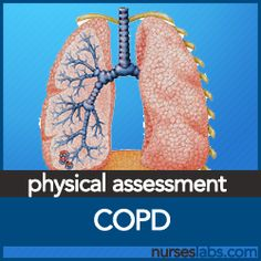 ncp for respiratory system Nursing assessment of the respiratory system chapter 12 / lesson 2 lesson quiz & worksheet  this includes medications, nursing interventions, testing, and other therapies,.