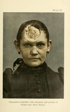"""Gummatous syphilide, with ulceration and necrosis of frontal bone If you've ever wondered how someone could live with a skull like this one. Tertiary syphilis would arise between three to 15 years after infection, and emerged as """"gummatous"""" (forming."""