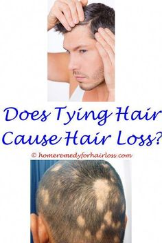 Natural Substitute For Hairgel Hair Loss