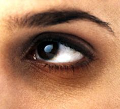 Nutriclue: Treatment of Dark Circles Under the Eyes
