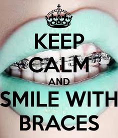 Braces Off Quotes Amusing Just Got Braces  Quotes From Popstars  Pinterest  Memes