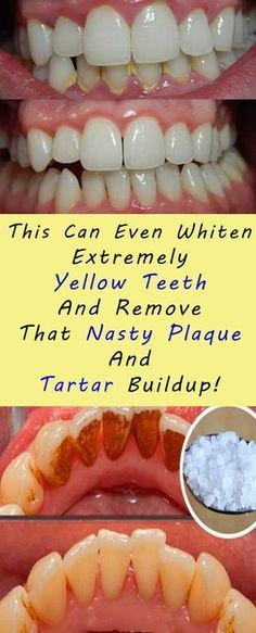 This Can Even Whiten Extremely Yellow Teeth And Remove That Nasty Plaque And Tartar Buildup! #health #teeth #fitness #beauty #diy