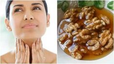 Home treatment of honey and nuts to take care of the health of the thyroid Home Remedies For Thyroid, Thyroid Imbalance, Thyroid Symptoms, Home Treatment, Thyroid Health, Best Weight Loss, Macaroni And Cheese, Health Tips, Honey