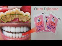 بكيس واحد من الخميرة حولي أسنانك من صفراء مقرفة الى بيضاء كالثلج طريقة تبييض الأسنان واسقاط Health Fitness Nutrition Beauty Skin Care Routine Fitness Nutrition