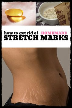 DIY - How to Get Rid of Stretch Marks.  Having stretch marks can be embarrassing and frustrating at the same time. The masks for smoothing splines are one of the best ways to handle this type of skin problem. You can use a do it yourself paste of oatmeal in order to get rid of stretch marks. Oatmeal is a natural exfoliant helping to erase stretch marks into oblivion. #diy #stretch #marks