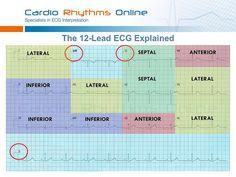 12 lead ekg interpretation template | 12 Lead Ecg Interpretation Template http://www.flickr.com/photos ...