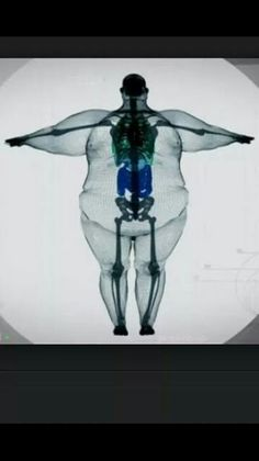 This is a very powerful picture I found in my news feed. It shows that while we look different on the outside we all are the same on the inside (anatomically speaking). You can see how much the extra weight affects our joints. Can you imagine what it must be like for this person? I'm only 50 lbs overweight and I know my joints hurt. My feet hurt. I can't imagine lugging around a couple hundred extra pounds! Tell me what you thought when seeing this very real picture? Did it elicit some…