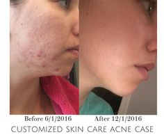Customized skin care for facials during this case study on adult acne.