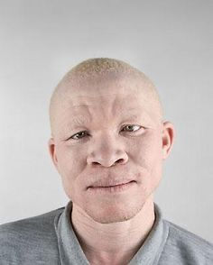 """Ritratti di Albini' (or ' Portraits of Albinos') has been described as """"a thought-provoking reflection on diversity in the South African population"""". Albino Men, Albino African, African Nations, African Men, Melanism, Photographs Of People, Beautiful Black Women, Beautiful Ladies, Photojournalism"""