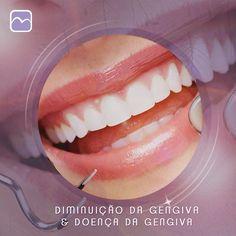 Se a retração (diminuição da gengiva) for causada por doença periodontal (infalmação da gengiva) o primeiro passo normalmente envolve uma limpeza especial chamada de raspagem e alisamento radicular. Para muitos pacientes esse tratamento associado a uma excelente higiene bucal em casa e avaliações regulares pode ajudar a estabilizar o problema periodontal e prevenir futuras perdas gengivais. Elisa Grillo Medicina Periodontal - Biosphere Health Center. SHLN lote 9 bloco G sala 212. (61)…