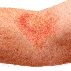 7 Wonderful Natural Cures For Eczema In Adults :: Detox, Apple Cider Vinegar, Vit C, Zinc, Evening Primrose Oil, Warm Bath - with almond oil, Goat Milk