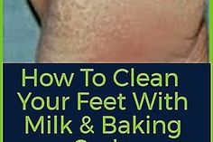Simple And Effective: How to Heal Your Cracked Feet With Baking Soda Baking Soda Scrub, Baking Soda For Hair, Baking Soda Face, Baking Soda Shampoo, Skin Care Tips, Skin Care Regimen, Baking Soda Dark Circles, Reduce Face Fat, Baking Soda Benefits