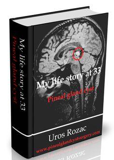 My life story at Pineal gland cyst surgery Ovarian Cyst, Reiki Meditation, Meditation Music, Mindfulness Meditation, Expressive Language Disorder, Sinus Surgery, Intracranial Pressure, Developmental Delays
