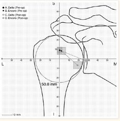 Shoulder Arthritis / Rotator Cuff Tears: causes of shoulder pain: Reverse total shoulder - function of two design types