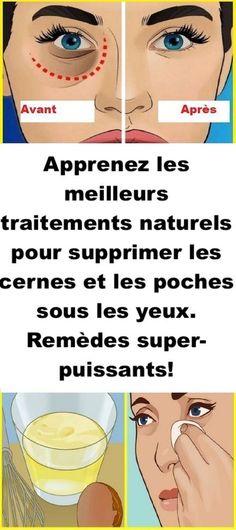 Apprenez les meilleurs traitements naturels pour supprimer les cernes et les poches sous les yeux. Remèdes super-puissants!#cernes #visage #beauté