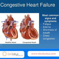 Heart failure (HF) is an increasingly prevalent chronic condition in which the heart is unable to properly pump the blood leading to breathing problems and other symptoms. Know more about the symptoms and causes for ‪#‎CongestiveHeartFailure‬ - http://www.dardsatya.com/congestive-heart-failure/